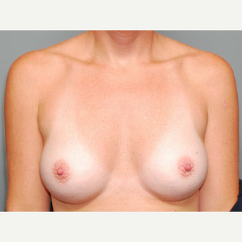 35 y/o Dual Plane Breast Augmentation after 3065871