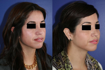 Cheek Augmentation before 1270384