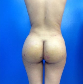 18-24 year old woman treated with Brazilian Butt Lift after 1918857