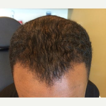 25-34 year old man treated with FUE Hair Transplant after 1548395