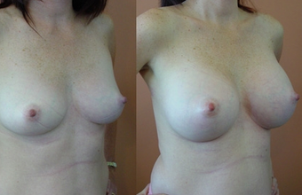 Breast Implants before 974222