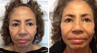 55-64 year old woman treated with Restylane after 1752866