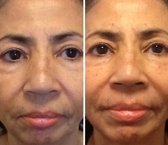55-64 year old woman treated with Restylane before 1752866