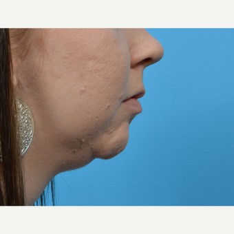 18-24 year old woman treated with Chin Implant before 3792820