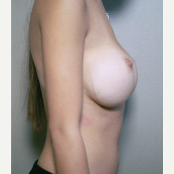 25-34 year old woman treated with Breast Implant Revision before 3153968