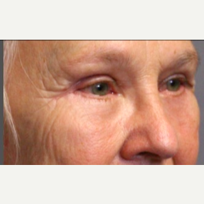 65-74 year old woman treated with Eye Bags Treatment after 3046860