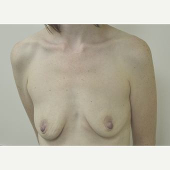 35-44 year old woman treated with Breast Lift with Implants before 3181986