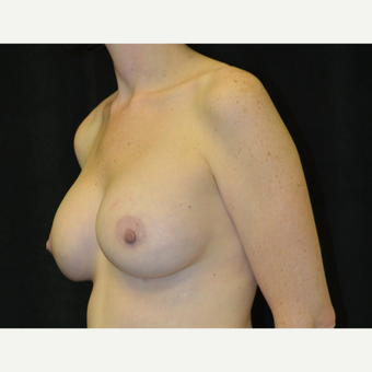 35-44 year old woman treated with Breast Lift with Implants after 3181986
