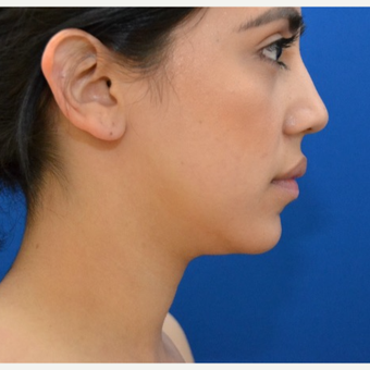 Buccal Fat Removal with Chin Liposuction before 2770007