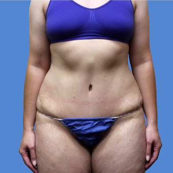 25-34 year old woman treated with Tummy Tuck after 3496880