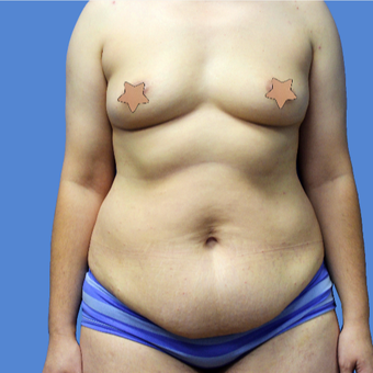 25-34 year old woman treated with Tummy Tuck before 3496880