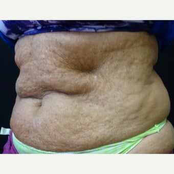 65-74 year old woman treated with Vanquish to lower abdomen after 2114884
