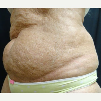 65-74 year old woman treated with Vanquish to lower abdomen before 2114884