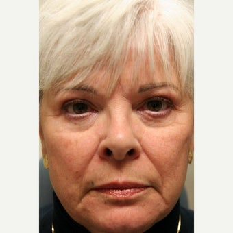 Woman treated with Radiesse to restore eyelid-cheek junction