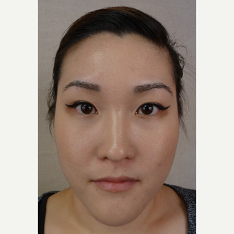 35-44 year old woman treated with Eyebrow Transplant after 3371906
