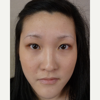 35-44 year old woman treated with Eyebrow Transplant before 3371906