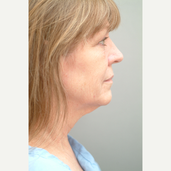 55-64 year old woman treated with Neck Lift before 3763439