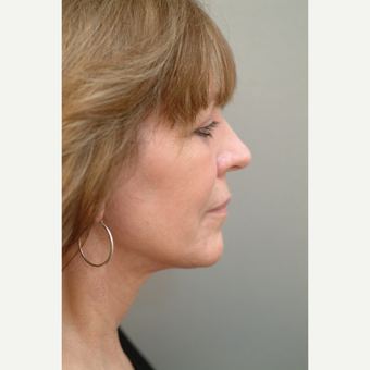 55-64 year old woman treated with Neck Lift after 3763439