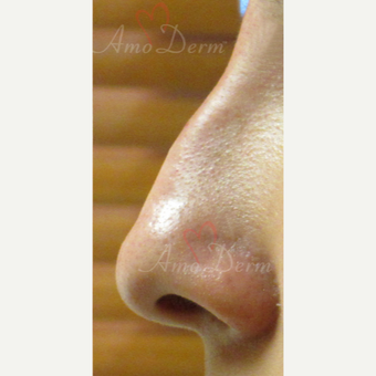 25-34 year old woman treated with Non Surgical Nose Job after 3381451