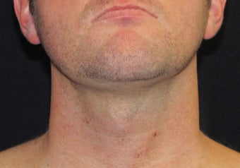 33 year old man treated NeckTite RFAL after 3683591