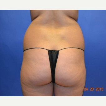 25-34 year old woman treated with Brazilian Butt Lift before 2999198