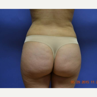 25-34 year old woman treated with Brazilian Butt Lift after 2999198