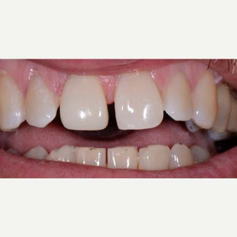 45-54 year old man treated with Tooth Repair after 2437306