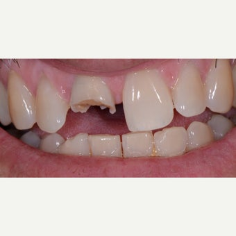 45-54 year old man treated with Tooth Repair before 2437306