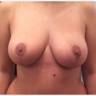 25-34 year old woman treated with Breast Reduction after 2930628