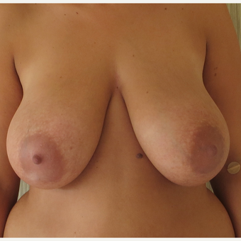 25-34 year old woman treated with Breast Reduction before 2930628
