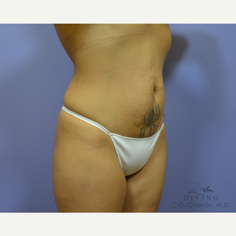 25-34 year old woman treated with Tummy Tuck before 3422002