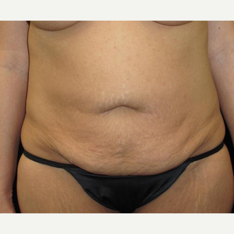 40 year old woman treated with Tummy Tuck before 3092913