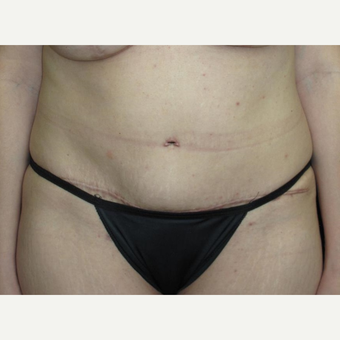 40 year old woman treated with Tummy Tuck after 3092913