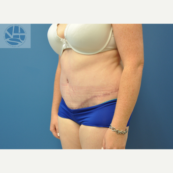 35-44 year old woman treated with Tummy Tuck after 3446011