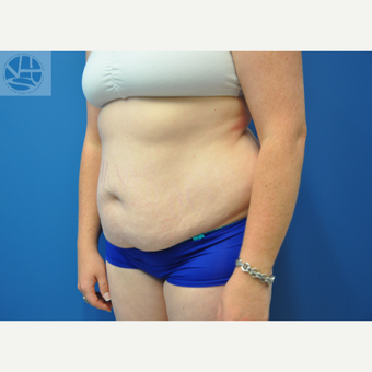 35-44 year old woman treated with Tummy Tuck before 3446011