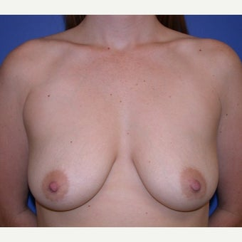 25-34 year old woman treated with Breast Augmentation before 1581165