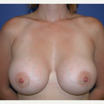 25-34 year old woman treated with Breast Augmentation after 1581165