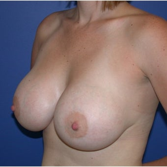 25-34 year old woman treated with Breast Augmentation 1581165