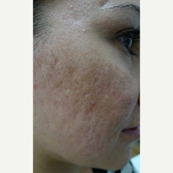 Multiple treatments for most difficult scars before 2559530
