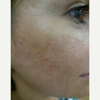 Multiple treatments for most difficult scars after 2559530