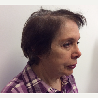 65-74 year old woman treated with Wrinkle Treatment before 3594787