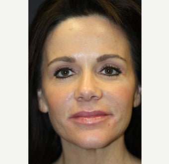 43 year old woman treated with Restylane after 1555630