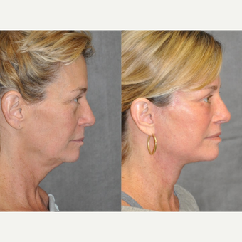 45-54 year old woman treated with Facelift before 3180742