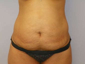 Tummy Tuck before 1191501