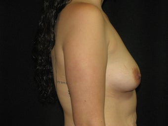 450 cc silicone gel breast implants 700027