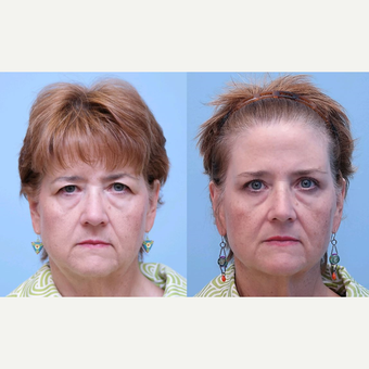 55-64 year old woman treated with Eyelid Surgery before 3340948