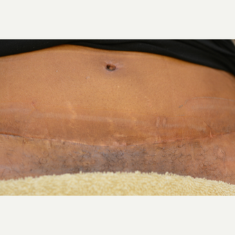 45 year old Tummy Tuck patient treated with Embrace Scar Therapy after 3522193