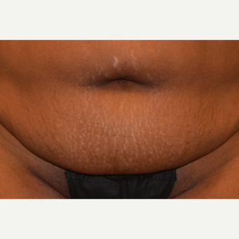 45 year old Tummy Tuck patient treated with Embrace Scar Therapy before 3522193