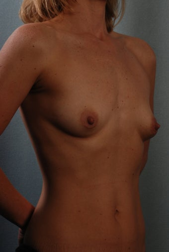 Breast Augmentation before 240332