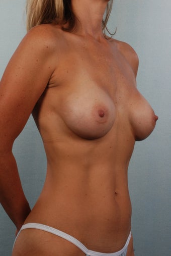 Breast Augmentation after 240332